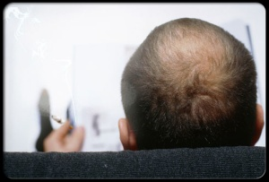 Increased hair loss and balding..men and women