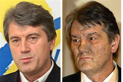 Ukraine  President  2008 Viktor Yushchenko seen before and after poisoning