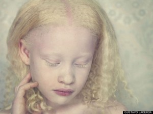 Albino Girl by Gustavo Lacer
